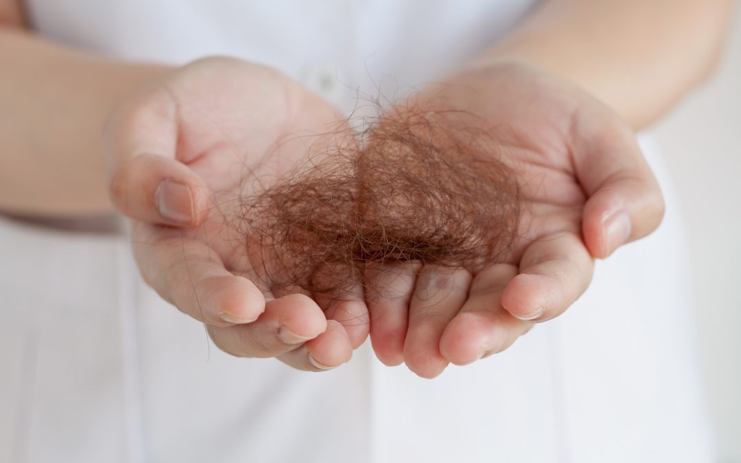 What are the symptoms of hair loss?