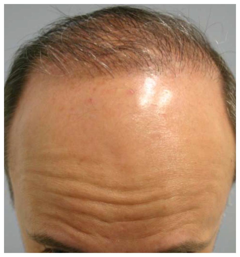 Patient 1- Nine Month Post Op hair restoration image