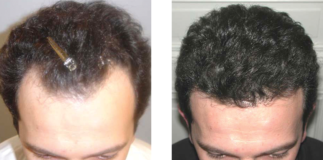 Before and after hair restoration image