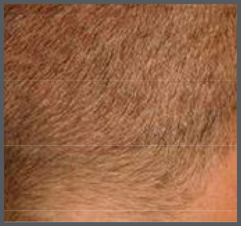 Back of a man's head 8 days after hair transplant image