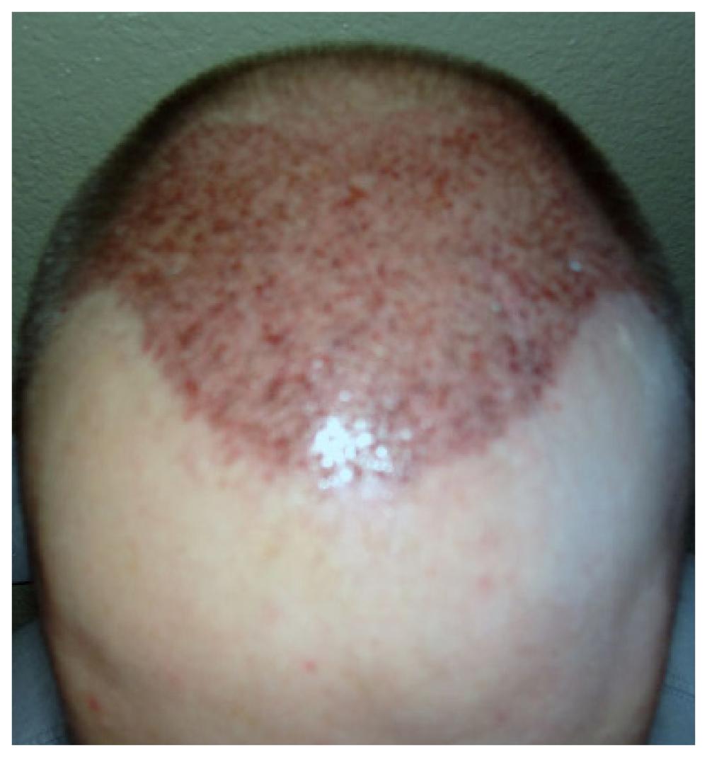 Patient 2- Post Op Hair restore image