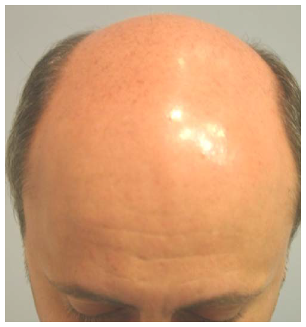 Patient 1-Before Picture of man with bald head