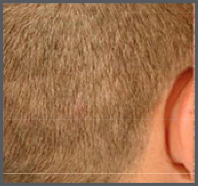 Pre Op hair transplantation image
