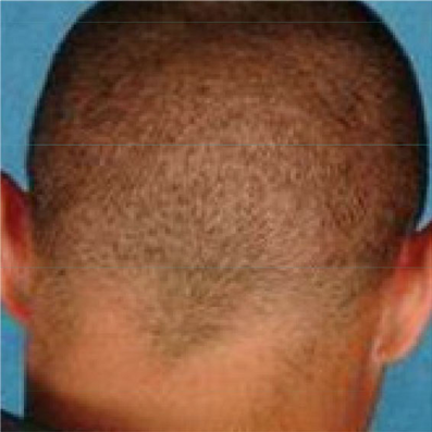 Image showing no scar technology on back of man's head