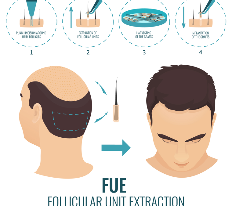 What is an FUE Transplant?